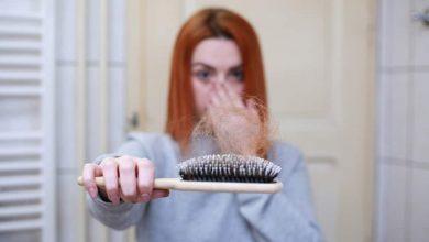 Bild von Haarausfall nach COVID?  Kann Biotin helfen?  |  Gesundheitsinfo